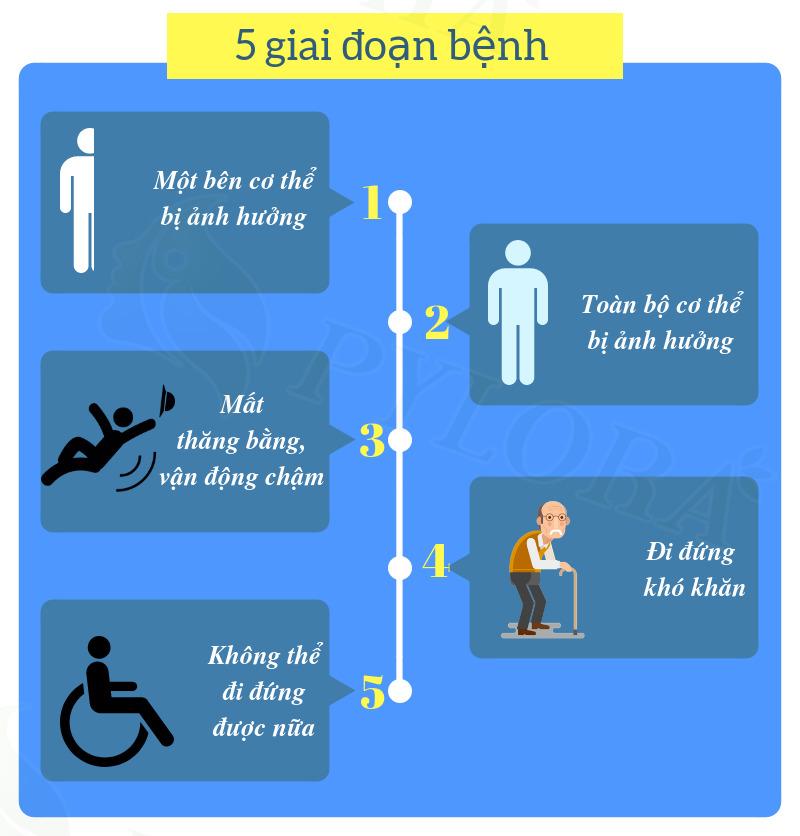 Các giai đoạn phát triển của bệnh Parkinson